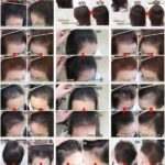 「なぜ薄毛改善の研究を始めたのですか?」本当の理由を白状します。